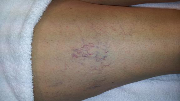 ont i benet åderbråck