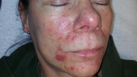 ljusbehandling acne
