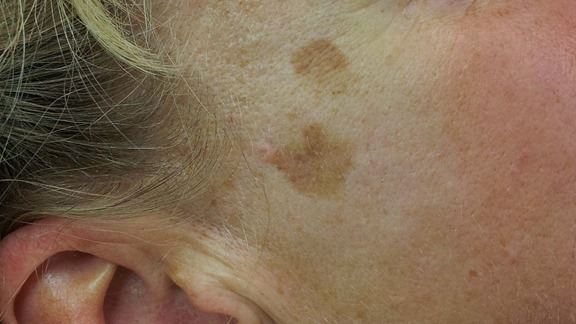 Farliga och ofarliga hudförändringar